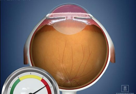 pat-glaucoma