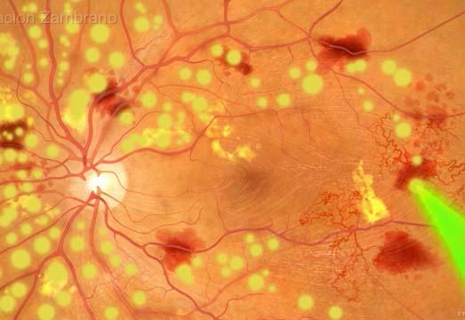 pat-retinopatia